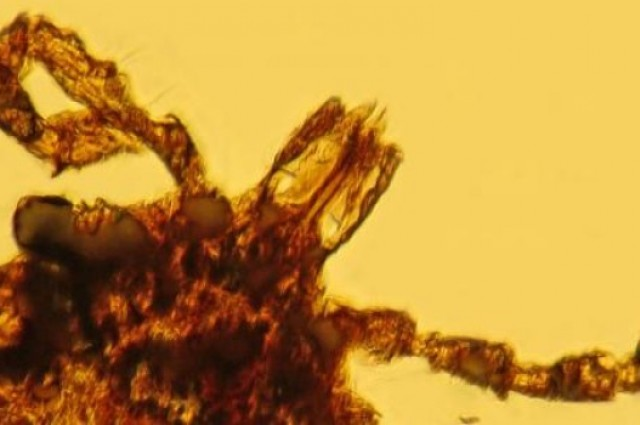 http://www.iflscience.com/health-and-medicine/amber-reveals-lyme-disease-older-humanity